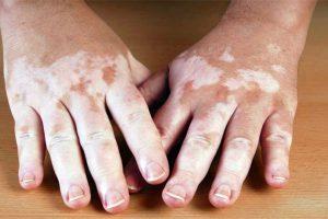 vitiligo5