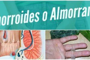 hemorroides-o-almorranas-665×285